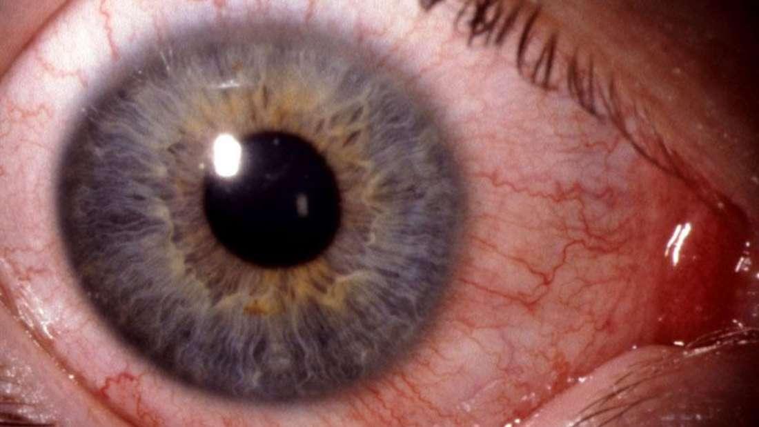 Berufsverbandes der Augenärzte e. V. (BVA)