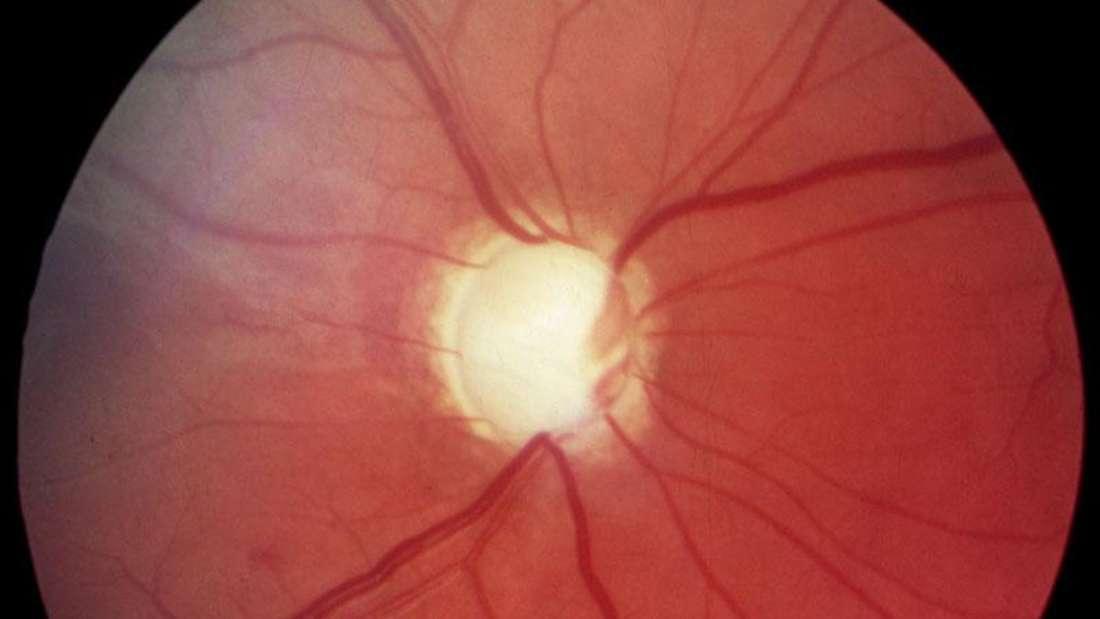 Grüner Star: Glaukom im fortgeschrittenen Stadium mit bereits schwer geschädigtem Sehnerv.