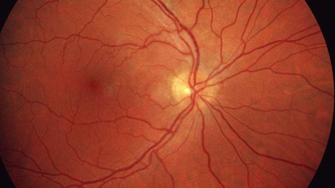 Eine gesunde Netzhaut Retina