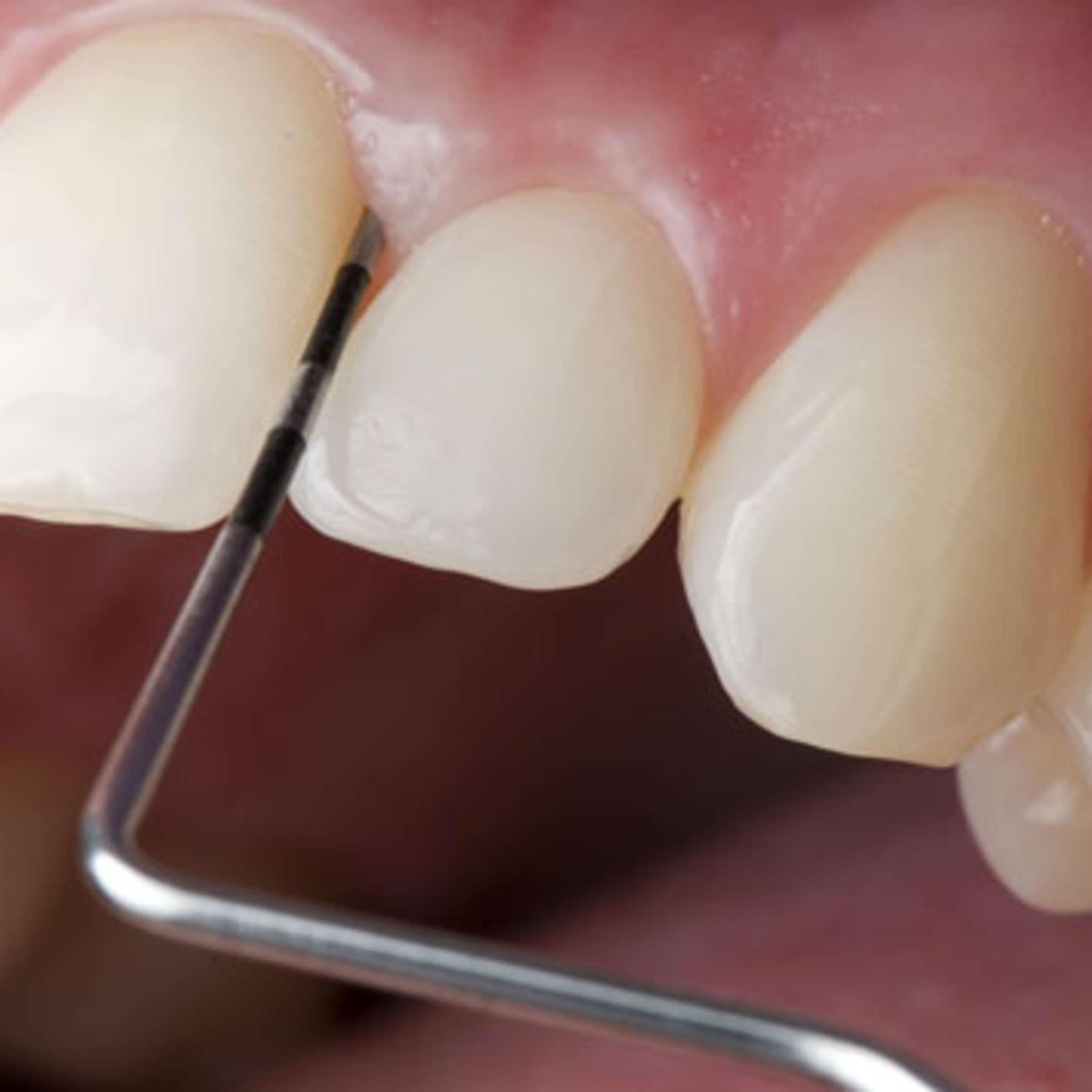 Zähne was tun schwarze Zahnentwicklung und